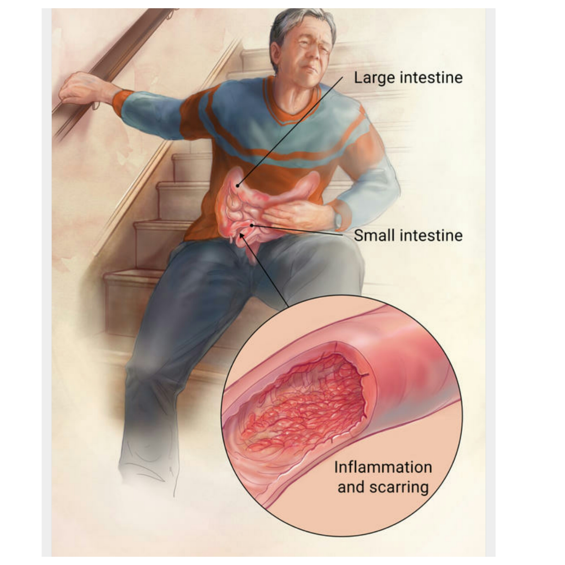 crohn's disease also called: ileitis |